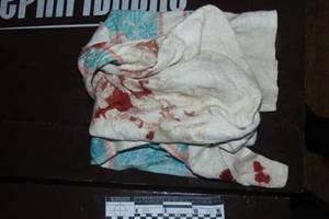 В Киеве мужчину изрезали ножом в кафе