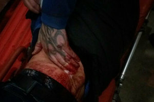 В Киеве трое мужчин порезали парня ножом