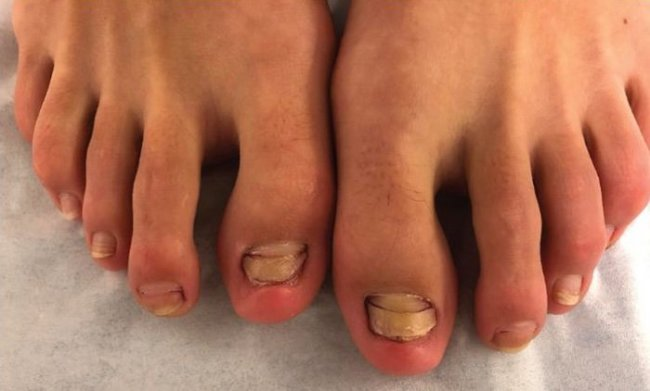 758-fish-pedicure-toenails-infection-1