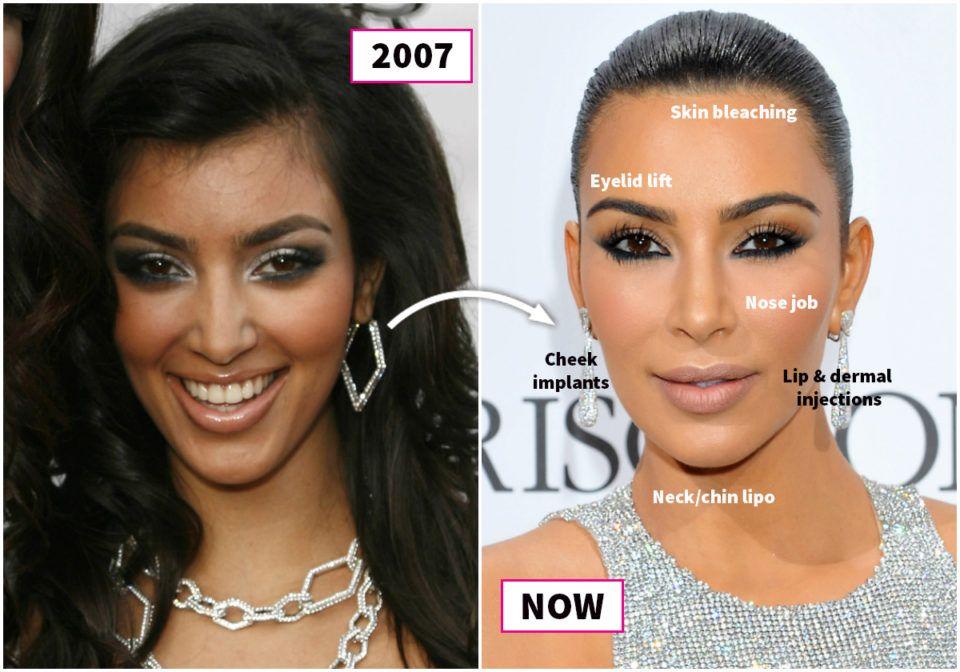 фото до и после пластических операций