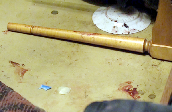 В Киеве мужчина проломил голову своему зятю, фото-1