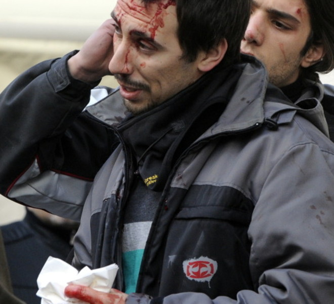 A injured man (R) is looked after during a protest of youths to demand a change of government as parliament met to hold a crucial vote that could topple Prime Minister Silvio Berlusconi on December 14, 2010 in Via del Corso in Rome. Italian Prime Minister Silvio Berlusconi scraped through a crucial confidence vote in the lower house of parliament by 314 votes in favour and 311 against. AFP PHOTO / TIZIANA FABI