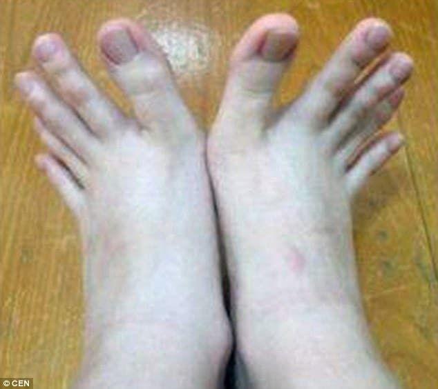 Тонкие длинные пальцы ног тощей голой девочки фото фото 181-912
