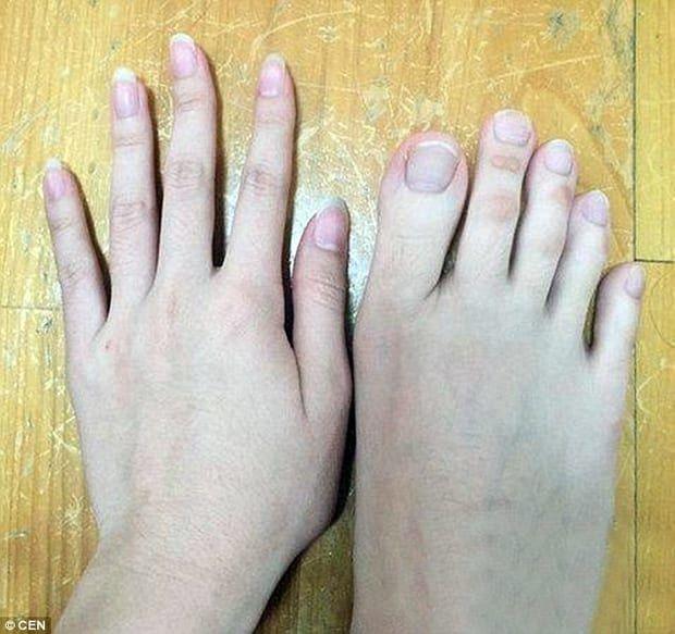 пальцы на ногах у женщин фото